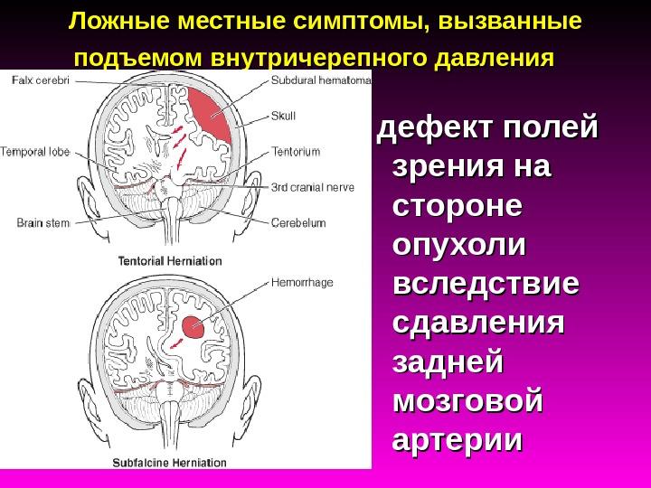 Внутричерепное давление опухоли головного мозга признаки