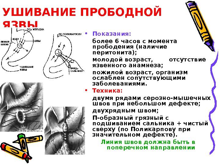 ушивание прободной язвы желудка