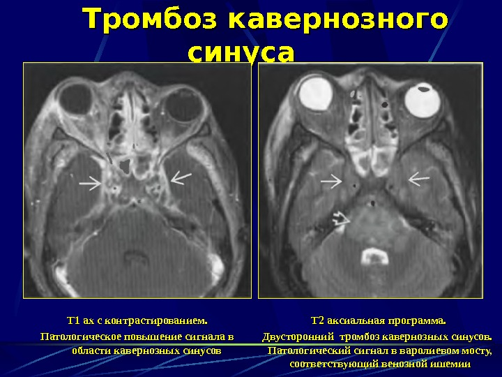 Тромбоз внутричерепных синусов симптомы