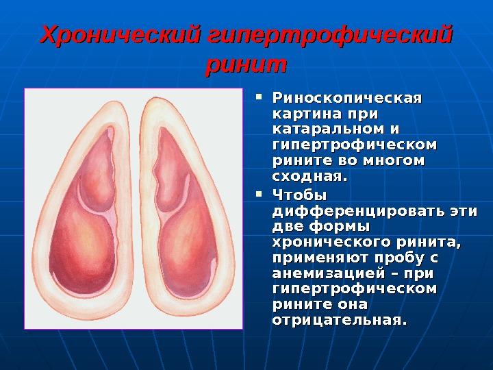 Хронический насморк при беременности как лечить