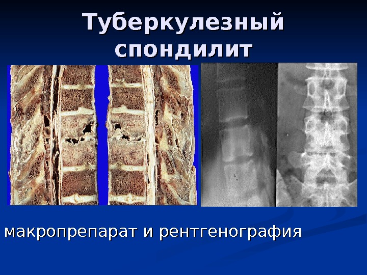 Опухоль локтевого сустава у собак