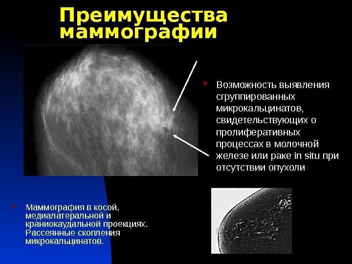 Маммография acr