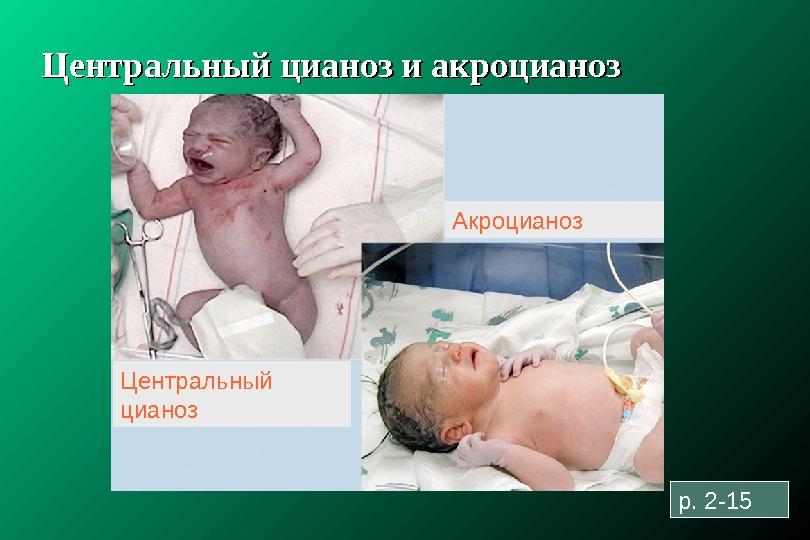 родовая травма ответственность врача и последствия получать прогноз