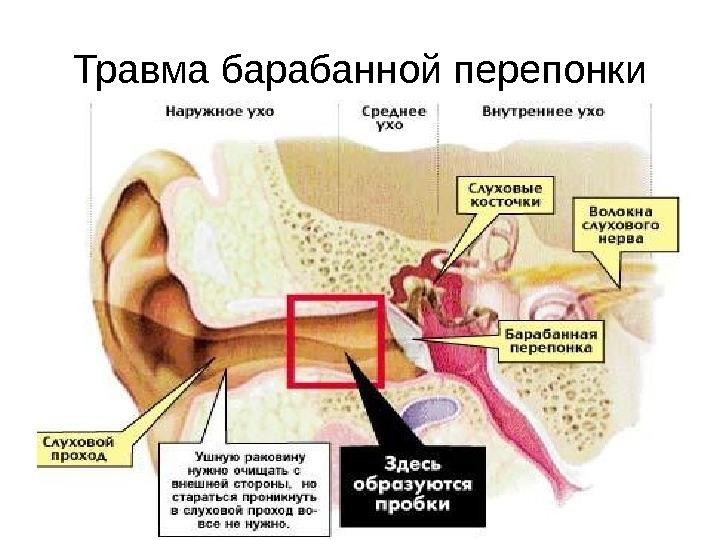 Как очистить ухо от серной пробки в домашних условиях