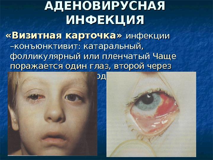 глазные проявления энтеровирусной инфекции презентация