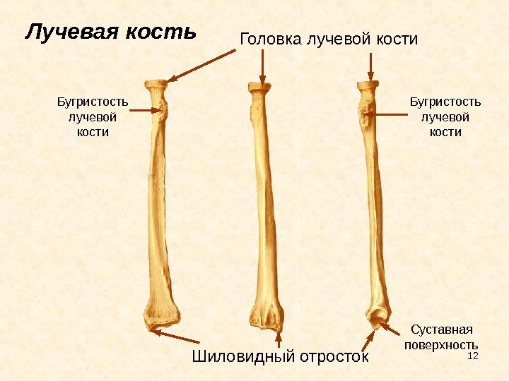 Перелом шиловидных отростков лучевой и локтевой кости