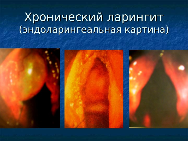 Отек миндалин: возможные причины, симптомы