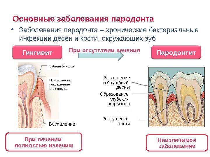 Как лечить парадонтит у взрослых в домашних условиях