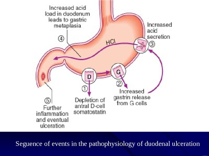pathophysiology of peptic ulcer Pathophysiology of peptic ulcer peptic ulcers are defects or corrosions in the gastric or duodenal mucosa that extend through the muscularis mucosa the epithelial cells of the stomach and duodenum secrete mucus as a result of cholinergic stimulation in response to irritation of the epithelial lining.