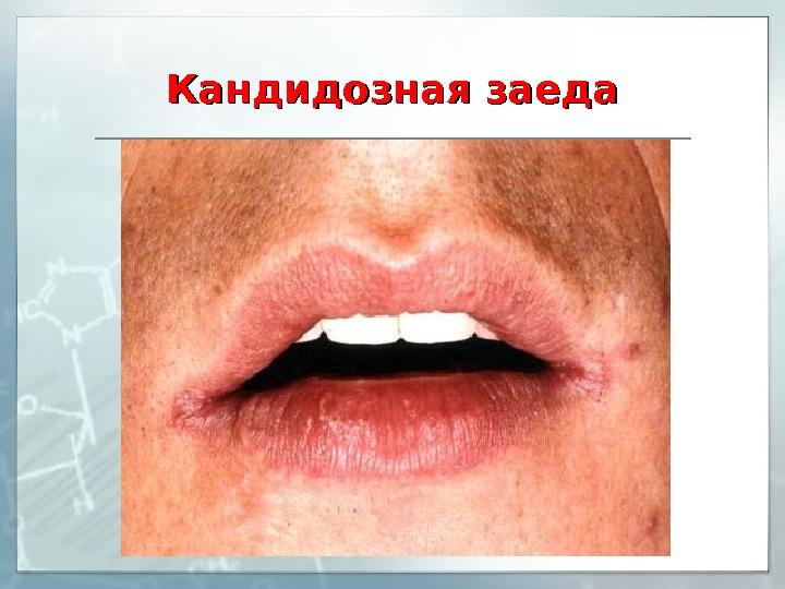Грибок рта лечение народными средствами