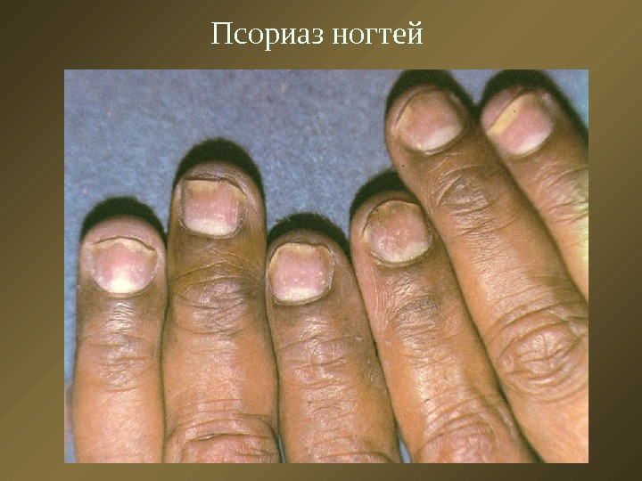 Фото при разных заболеваниях ногтей