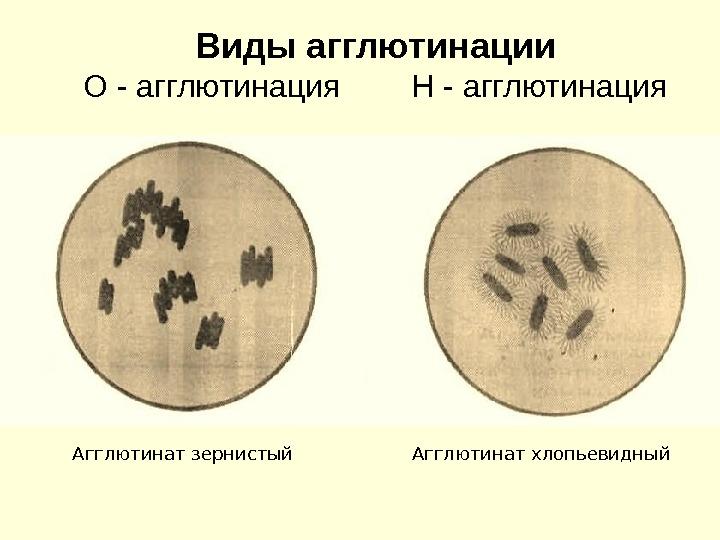 vyazkost-agglyutinatsiya-spermogramma-lechenie