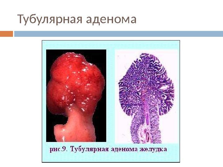 Презентация РАК ЖЕЛУДКА Никифорчин АИ