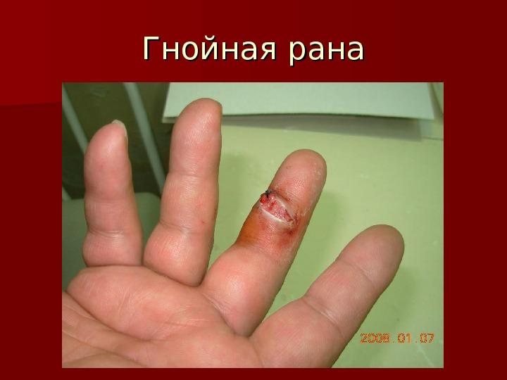 Что хорошо вытягивает гной из раны в домашних условиях 779