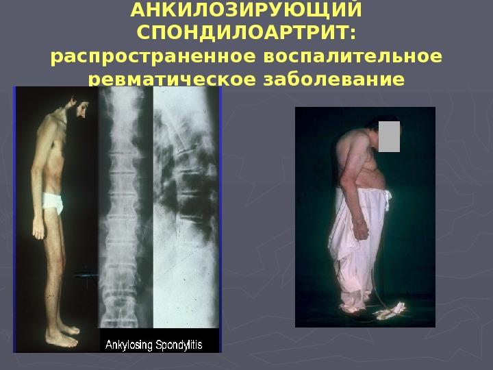 ревматические заболевания суставов.презентации