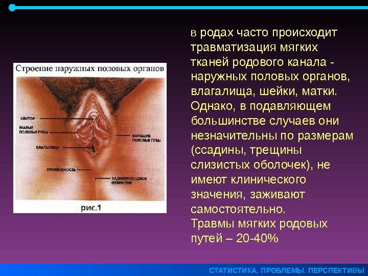 treshini-slizistoy-vlagalisha