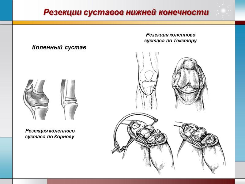 разрыв мениска каленного сустава операция
