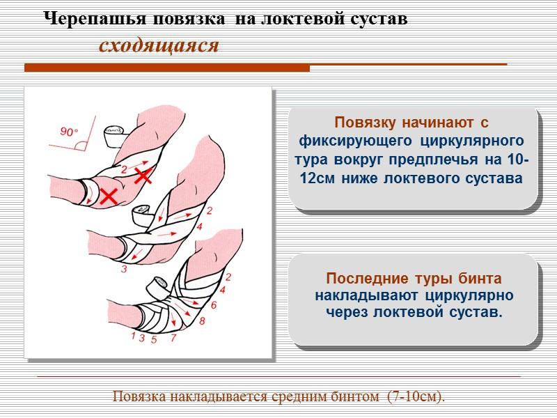 расходящаяся черепашья повязка на локтевой сустав