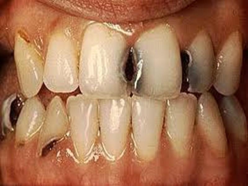 Болит вылеченный передний зуб