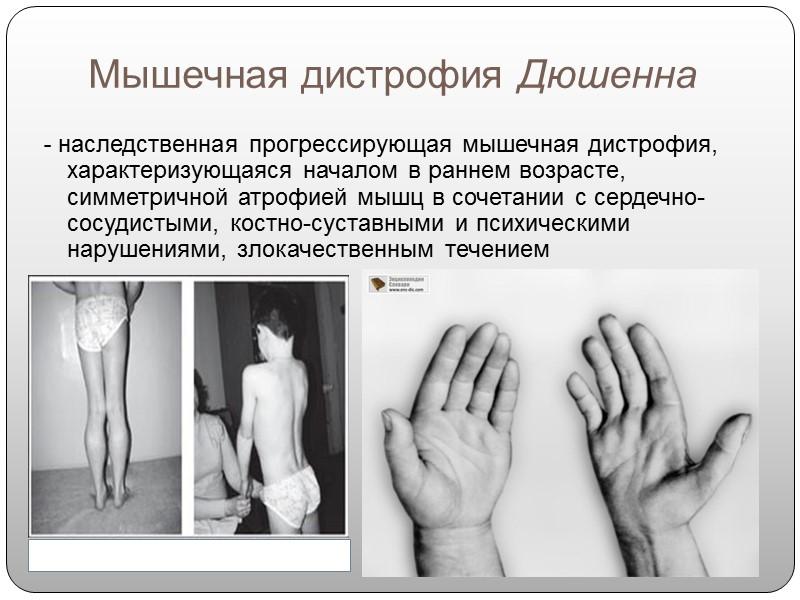 Дистрофии в картинках