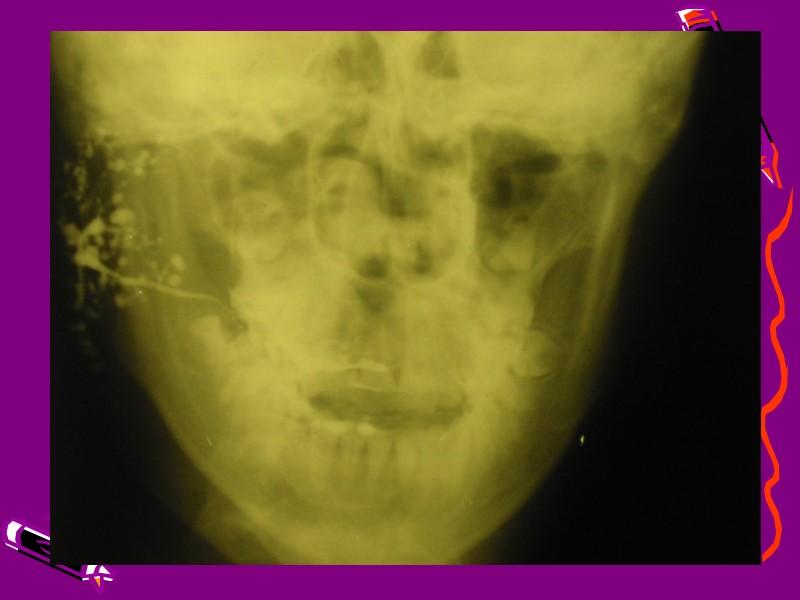 1.Эпидемический паротит у ребенка. 2. Сосочек протока околоушной железы при эпидемическом паротите. 3. Сосочек