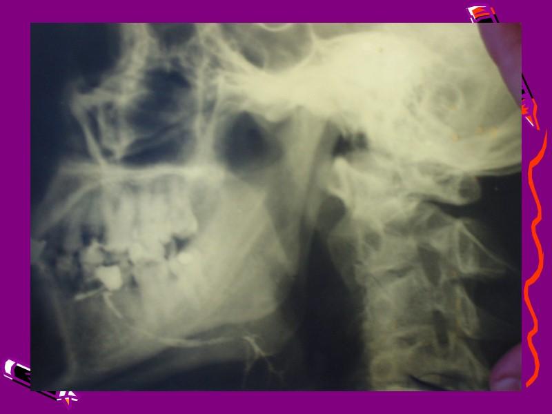 Острый сиалоаденит поднижнечелюстной  слюнной железы.