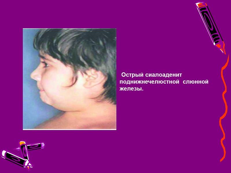 Острый сиалоаденит может быть:  серозным,  гнойным (очаговым или диффузным),  редко –