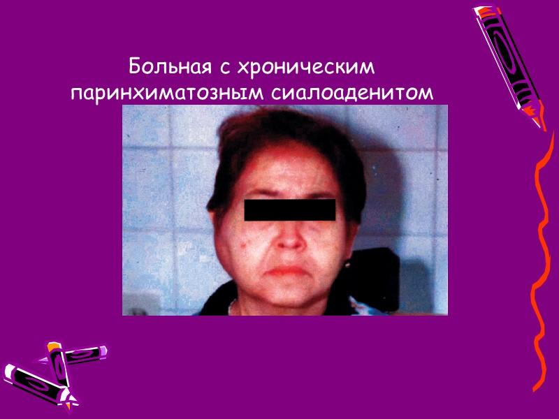 369. Эпидемический паротит (острый период): отек тканей. Увеличение околоушной железы может сочетаться с отеком