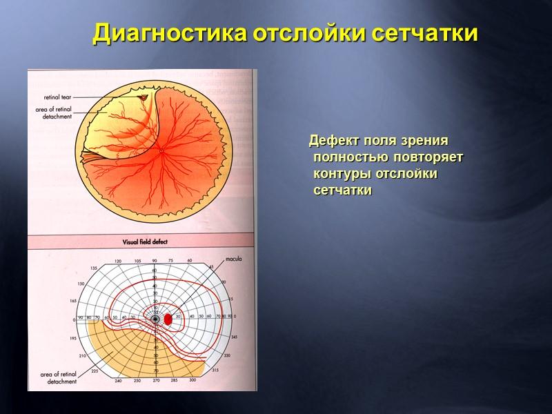 нецентральная зрительная фиксация потология сетчатки бесценный