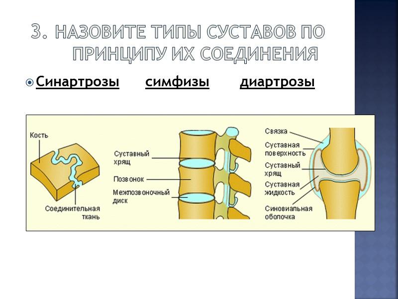 артриты и их принципы