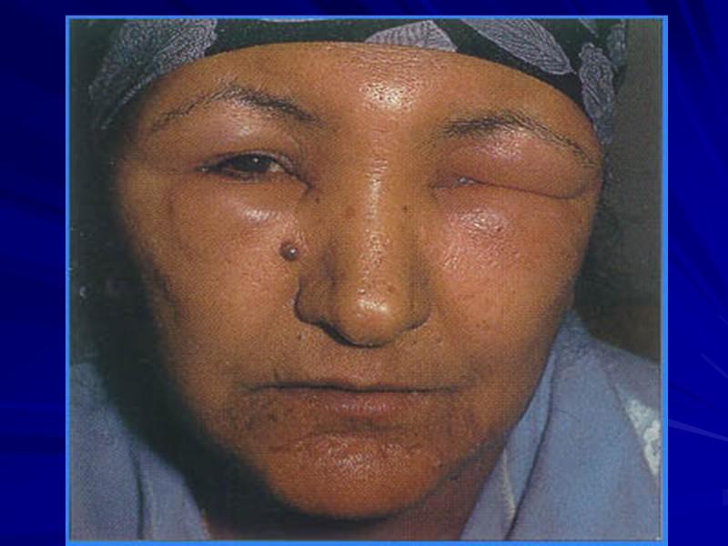 Ренальные заболевания (нефрология): Клубочек (гломерулонефриты). Причины: ГН, ревматические заболевания, сахарный диабет, артериальная гипертензия Канальцевый