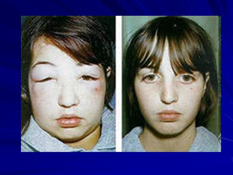 Гломерулонефриты (ГН) – группа заболеваний, характеризующихся воспалительными изменениями, преимущественно в клубочках почек, и связанными