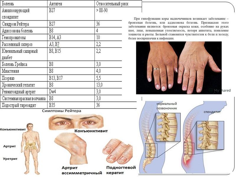 Уретрит артрит конъюнктивит