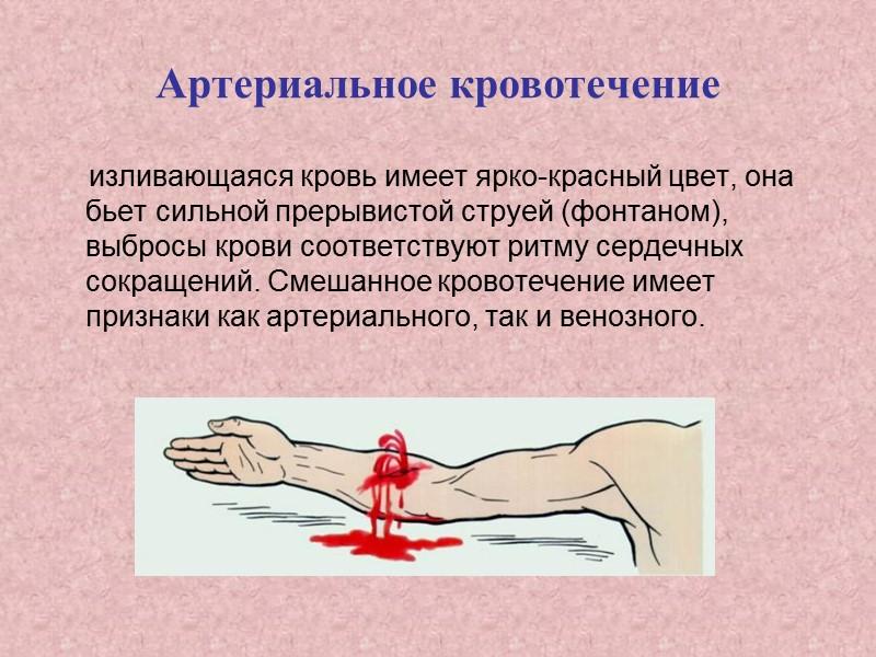 Кровотечения первая помощь в картинках