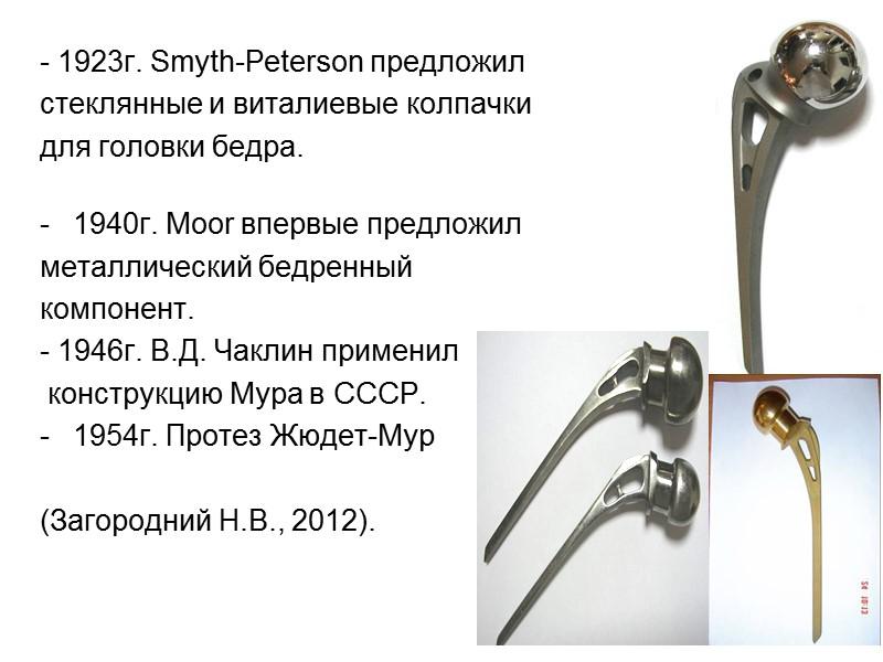 Клинический пример Группа 2 Пациентка,П., 78 лет, 2012г. 2012г.  2012г. 2014г. 2015г. 3мм
