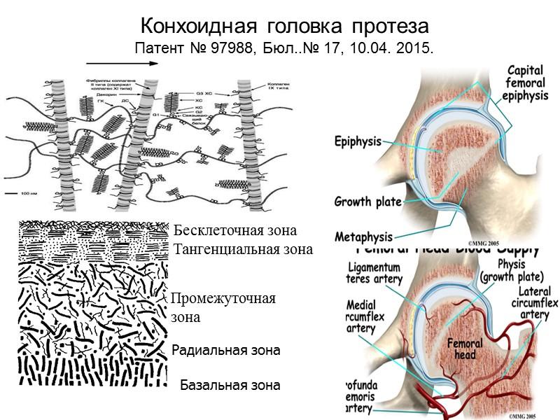 Осложнения после однополюсного протезирования  Протрузия: До 1 года - 3±1 мм: 1-3 года