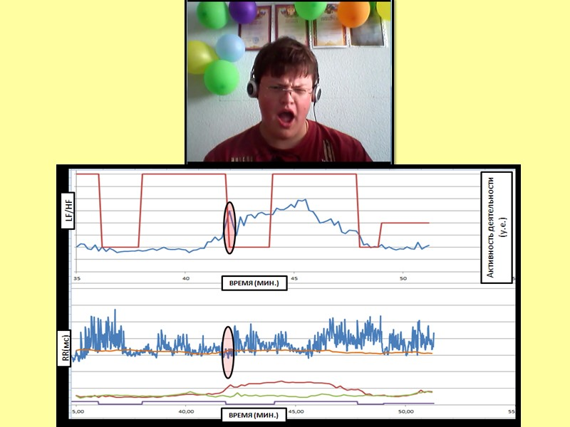 Выводы: Уровень вегетативного напряжения имеет широкие динамические изменения в контексте информационной нагрузки от 0,4