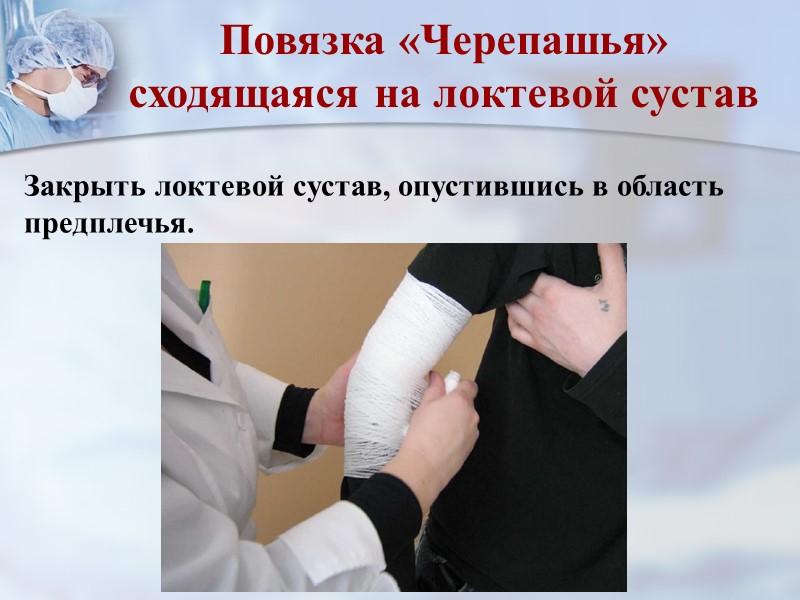 Мягкие повязки Показанием к наложению марлевых бинтов следует считать лечение заболеваний и повреждений, фиксацию