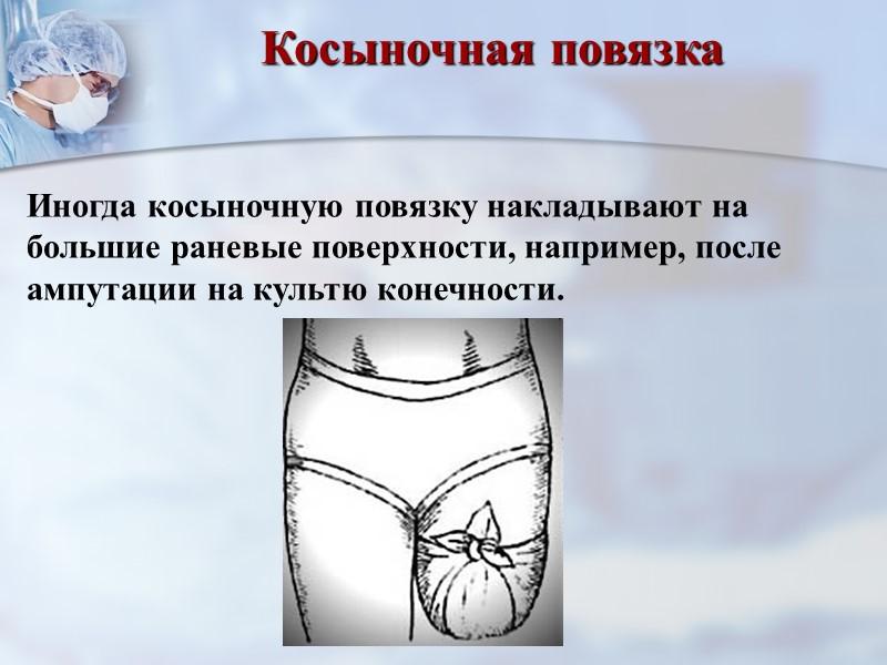 Колосовидная повязка на плечевой сустав После перехлеста в области плечевого сустава бинт снова наложить