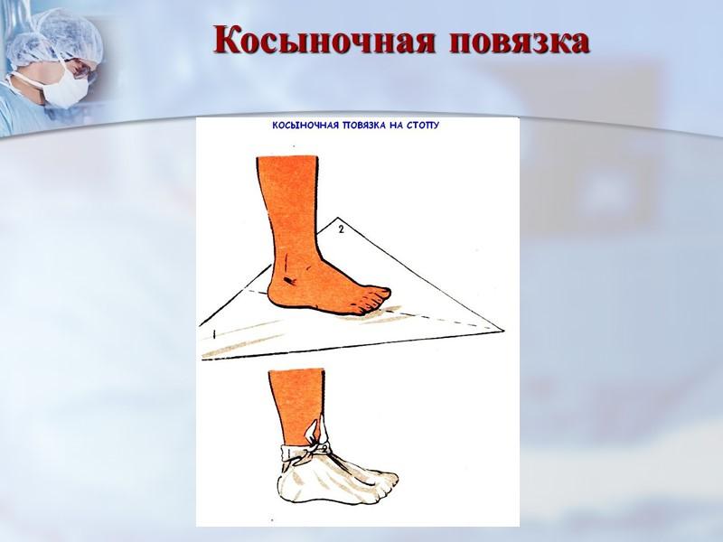 Колосовидная повязка на плечевой сустав Повторять ходы бинта, пока не закроется весь сустав.