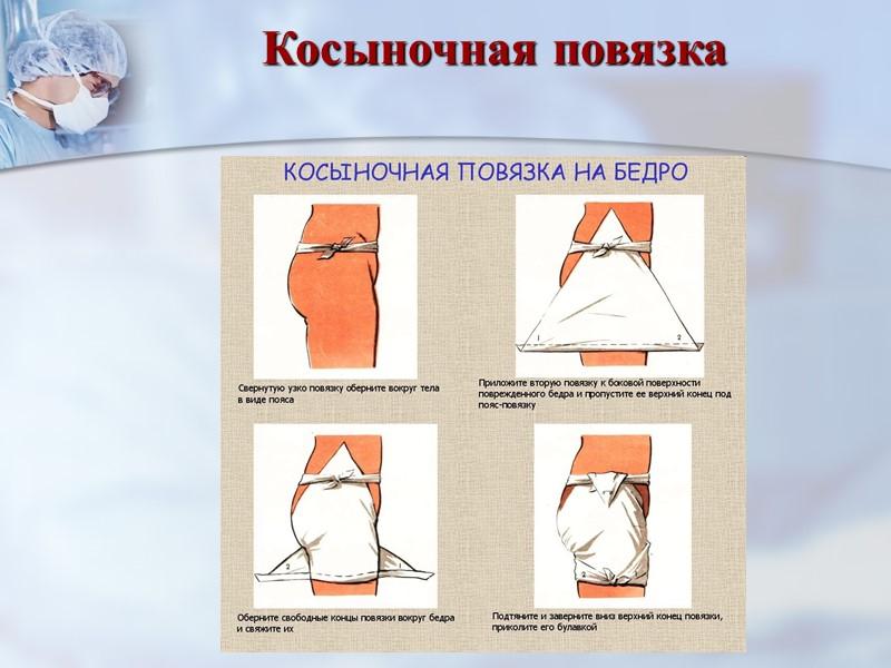 Колосовидная повязка на плечевой сустав Закрепить конец бинта на груди булавкой или лейкопластырем.