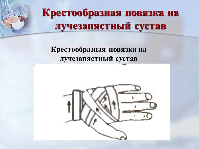 Повязка «Шапочка Гиппократа» Зафиксировать бинт в левой руке в области затылка; бинтом в правой