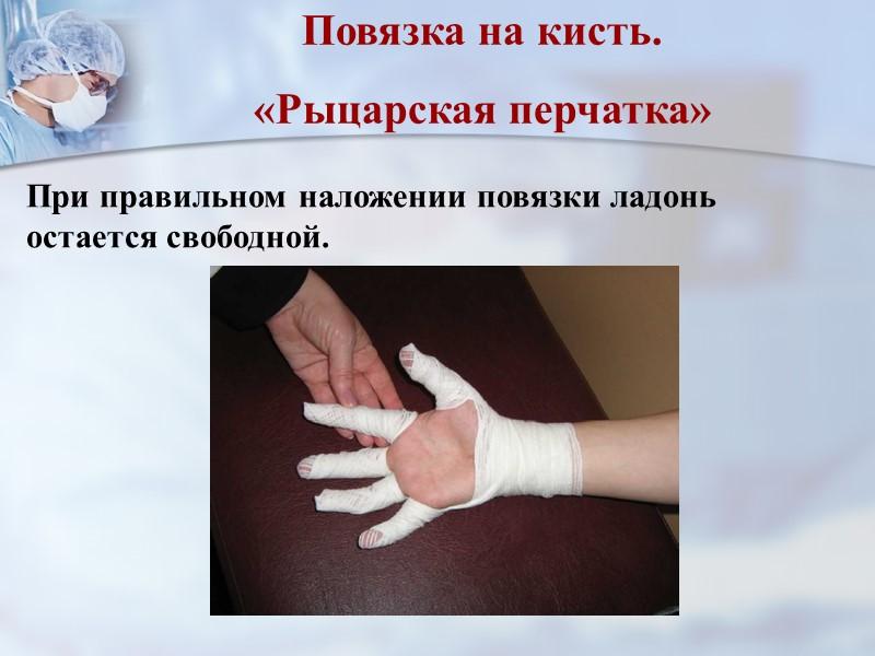 Косыночная повязка Иногда косыночную повязку накладывают на большие раневые поверхности, например, после ампутации на