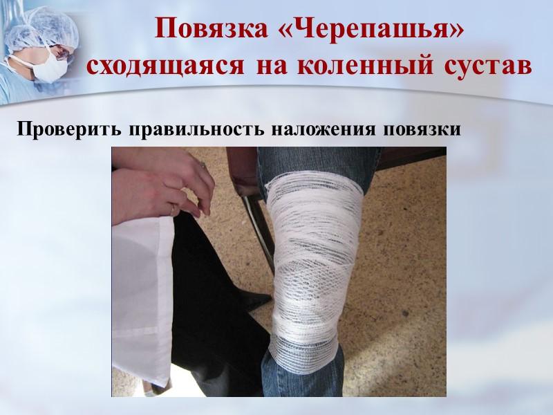 Мягкие повязки Бинтование размотанным бинтом приводит, как правило, к неравномерному натяжению и появлению болевых