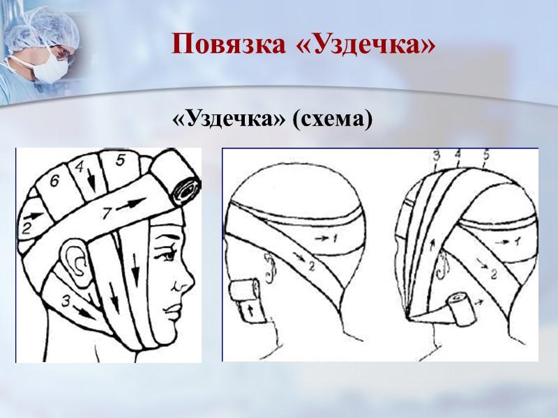 Повязка на кисть.  «Рыцарская перчатка» Направить бинт косо по тыльной поверхности кисти на