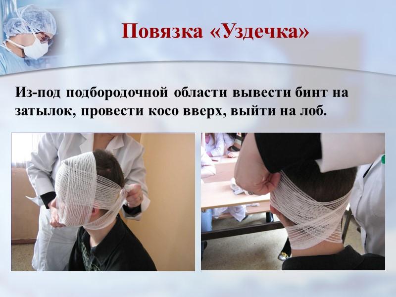 Повязка на кисть.  «Рыцарская перчатка» После наложения перевязочного материала осуществить иммобилизацию руки косыночной