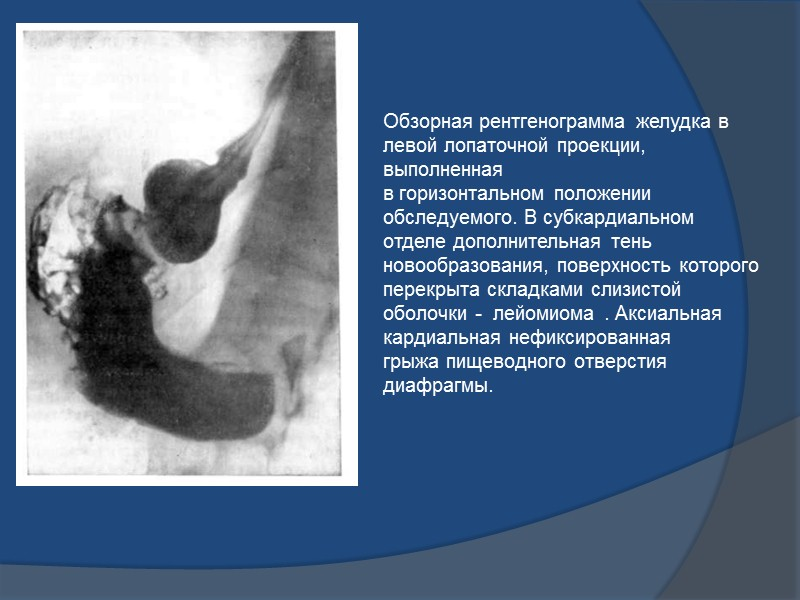Рентгенологические признаки малигнизации полипов: неправильная форма с зазубринами с нечеткими контурами и неоднородность структуры;