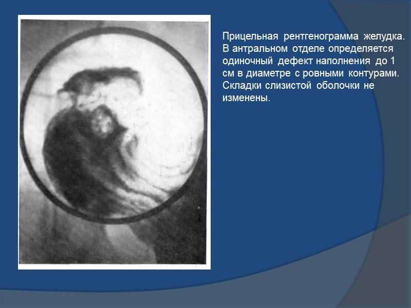 Обзорная рентгенограмма желудка в левой лопаточной проекции, выполненная в горизонтальном положении обследуемого. В субкардиальном