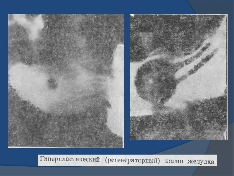 При трансабдоминальном ультразвуковом исследовании и эндосонографии желудка лейомиомы выглядят как анэхогенные образования, исходящие из