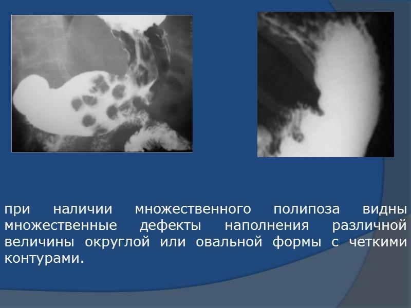 Таким образом, ни клиническое течение, ни рентгенологические признаки доброкачественных неэпителиальных опухолей не позволяют провести